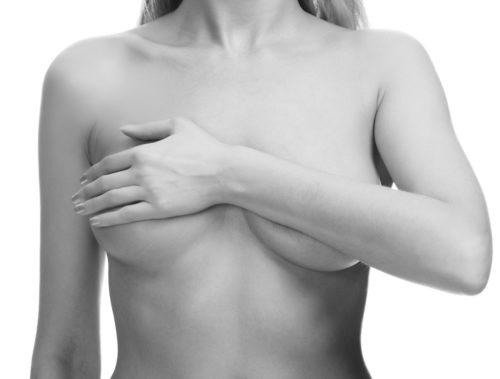 Mastology Articles